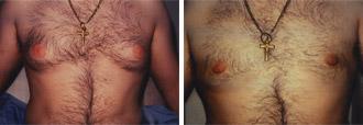 Elimine los senos masculinos – Ginecomastia – Grasa del pecho
